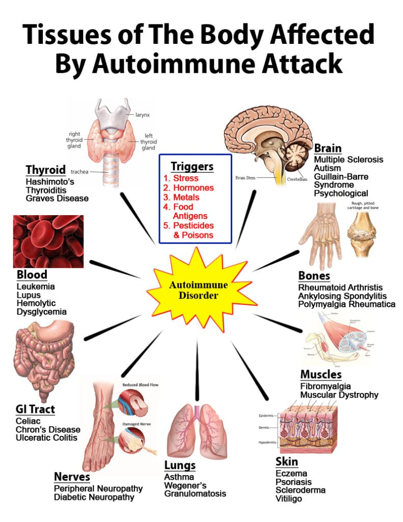 autoimmune illnesses