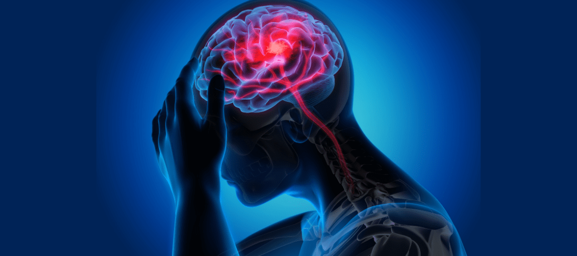 Headache caused by Painkillers