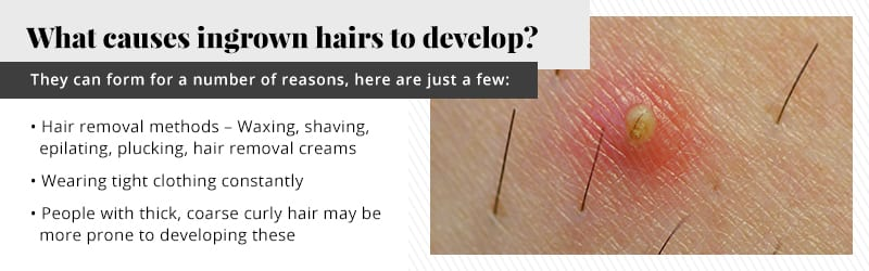 Resons why hairs become ingrown