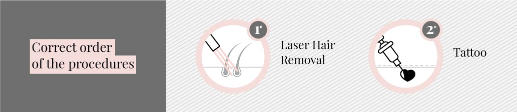 have laser first then get a tattoo