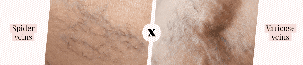 Difference between spider veins and varicose veins